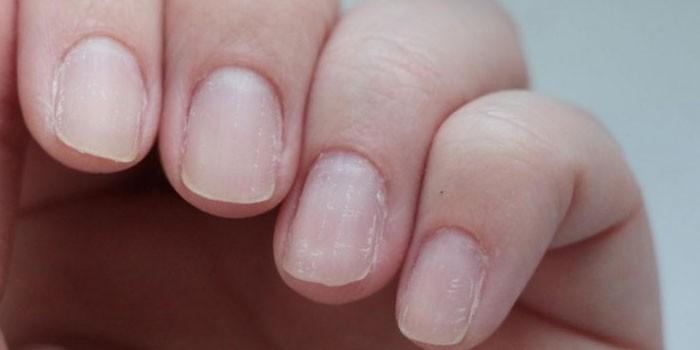 Расслоенные ногти