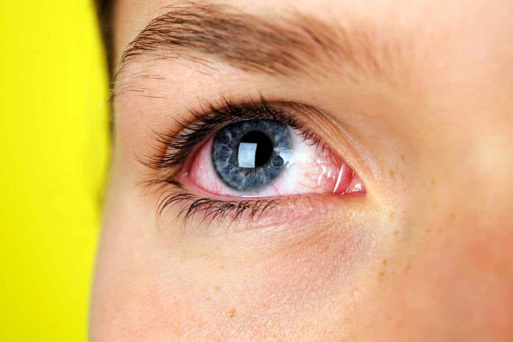 Воспаление органов зрения