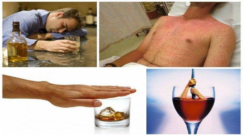 Аллергия на алкоголь: симптомы, фото