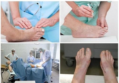 операционное лечени косточки