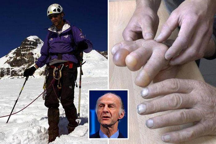 Отморожение одного или нескольких пальцев на руке способны вызвать низкие температуры
