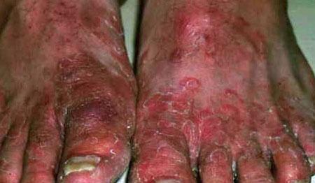 Последствия заражения крови