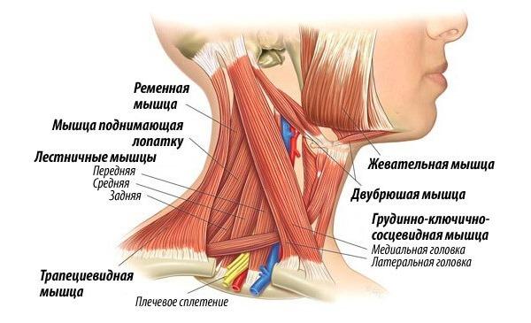 Миозит шеи - это воспаление мышечных волокон шейной области