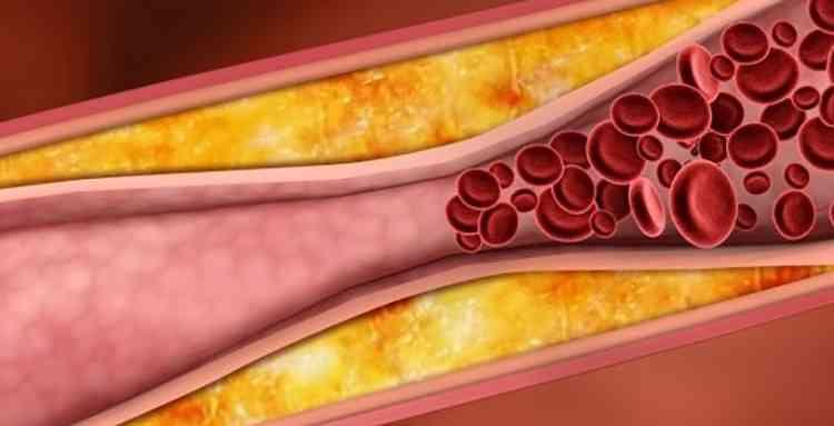 Вербейник поможет от атеросклероза