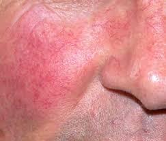 красные пятна на лице после алкоголя