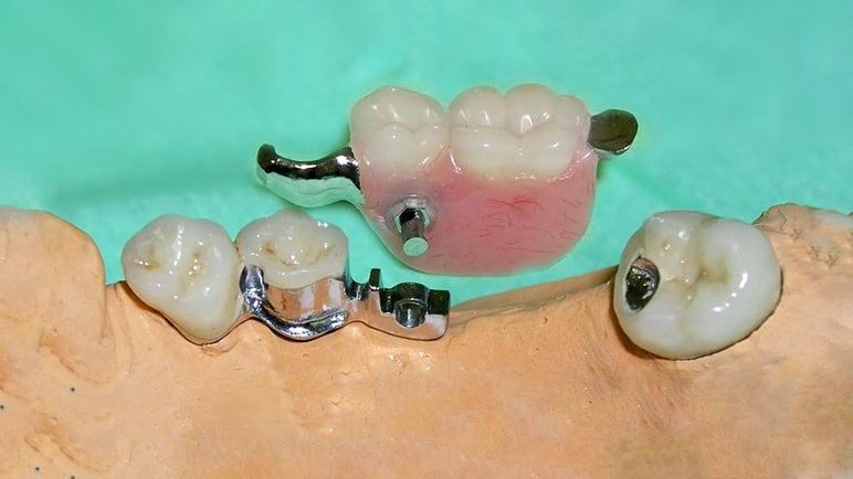 бюгельный протез на два зуба