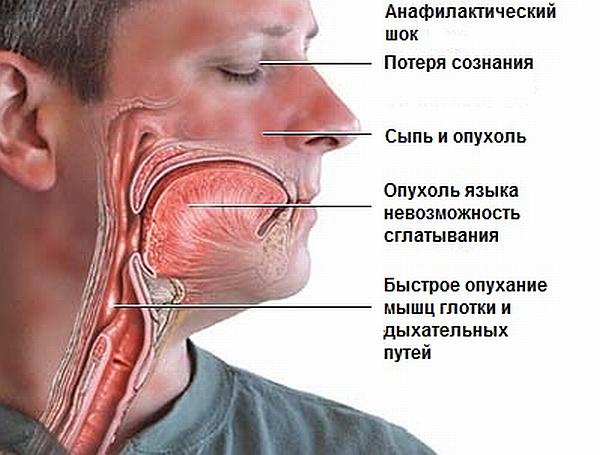 Признаки аллергии на алкоголь
