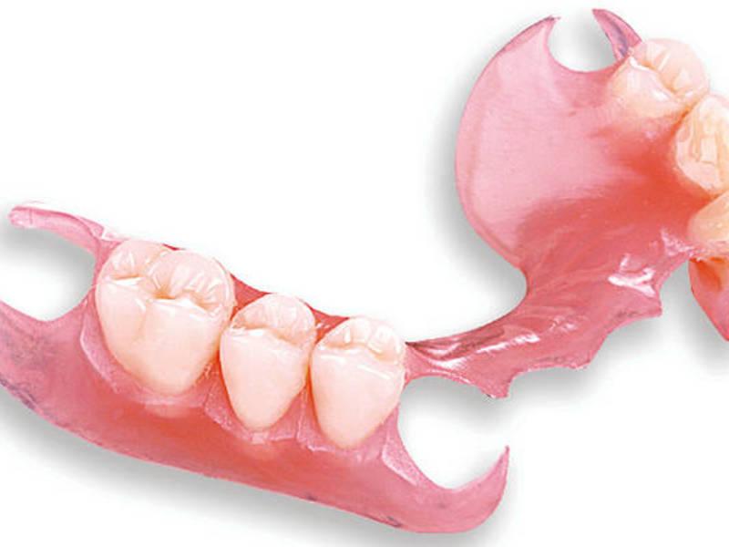 Что такое съемные силиконовые зубные протезы