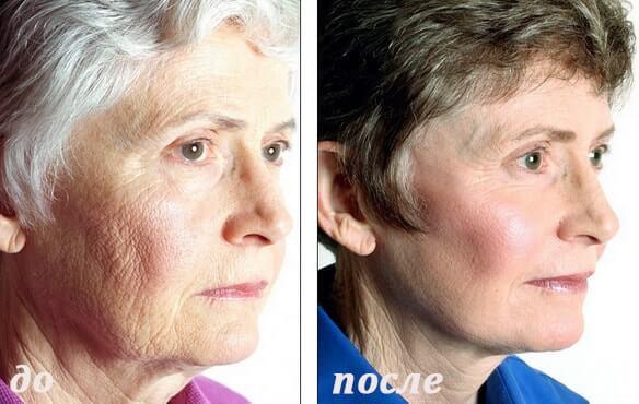 фото до и после глубокого пилинга