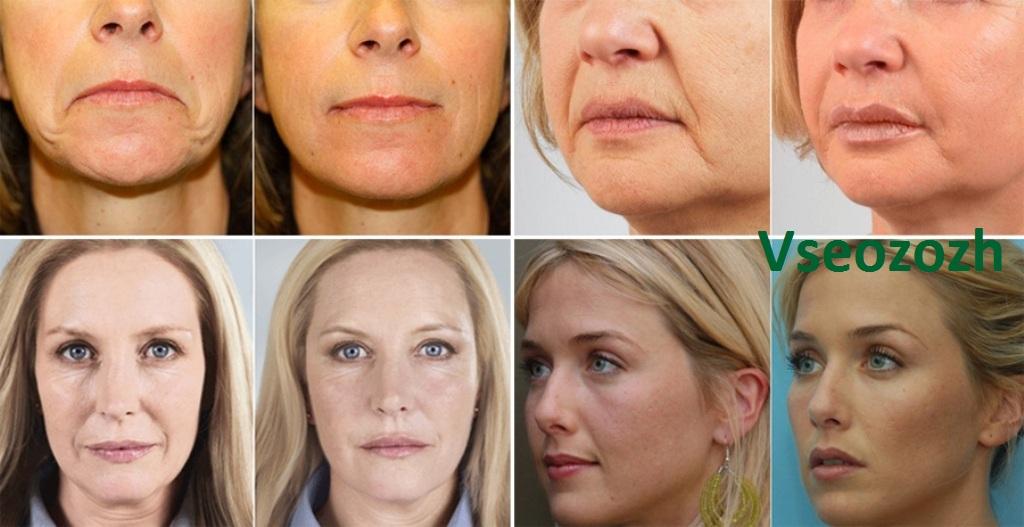 Мезотерапия лица: фото до и после процедуры