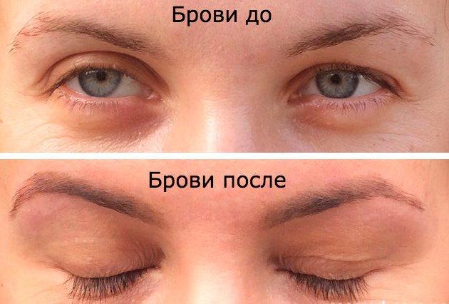 фото до и после использования касторки