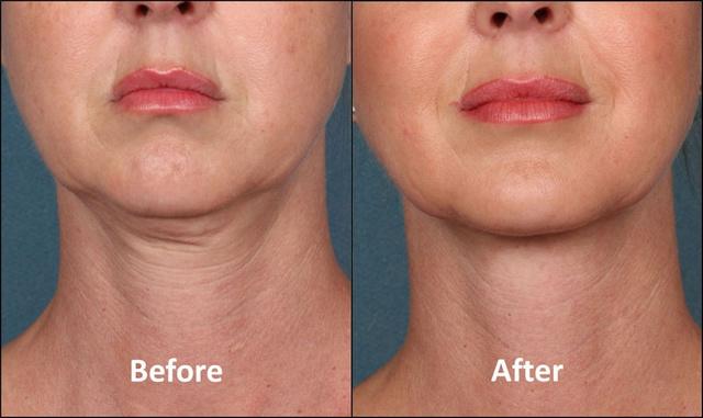 фото до и после фракционной мезотерапии