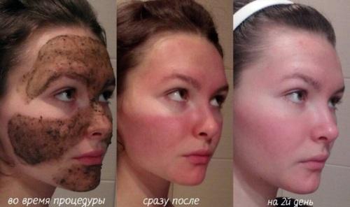 Химический пилинг для лица в салоне и дома. Отзывы, фото до и после, плюсы и минусы