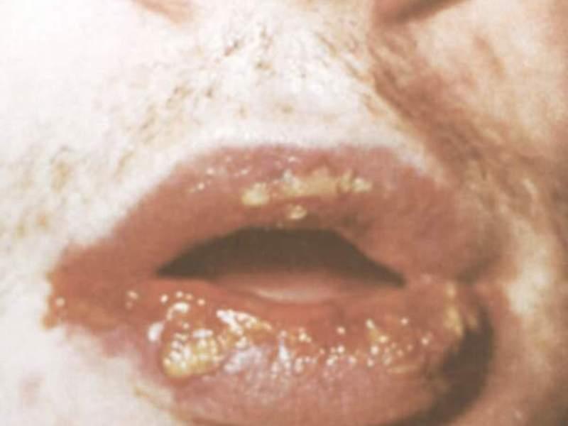 Поражены губы