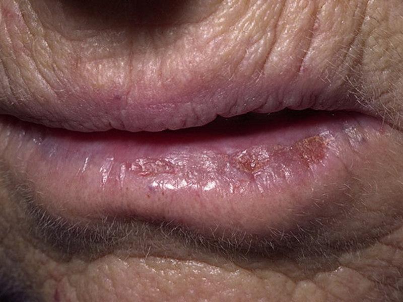 Чем рекомендовано мазать губы