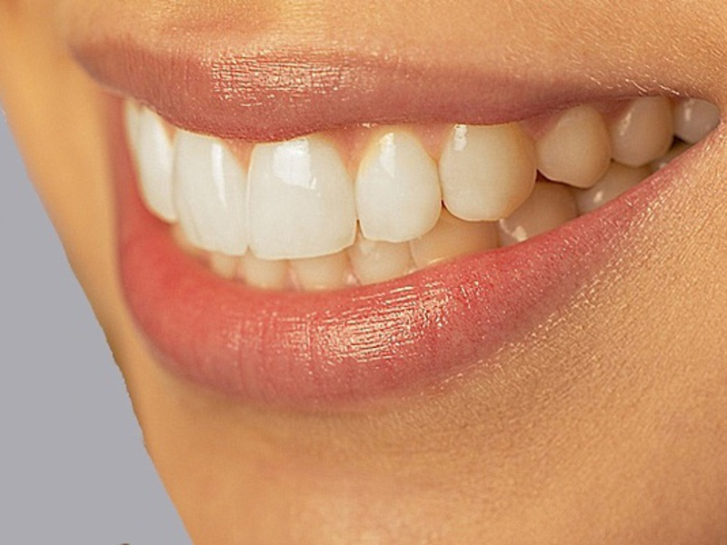 Процесс установки силиконовых зубных протезов