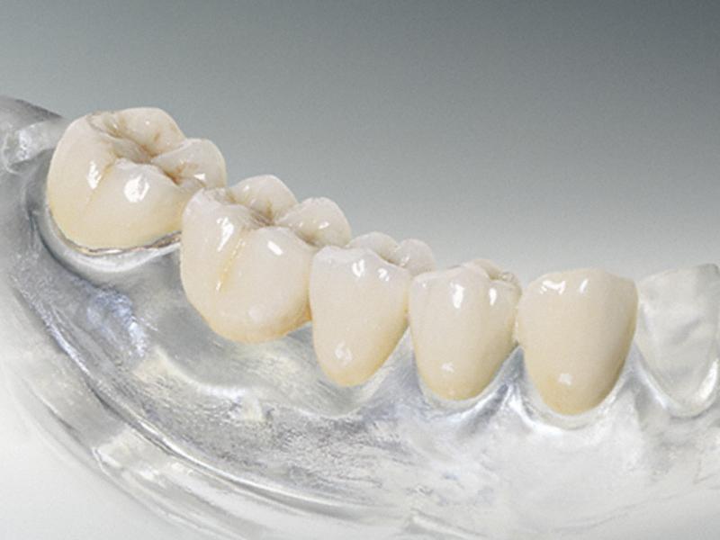 Преимущества силиконовых зубных протезов