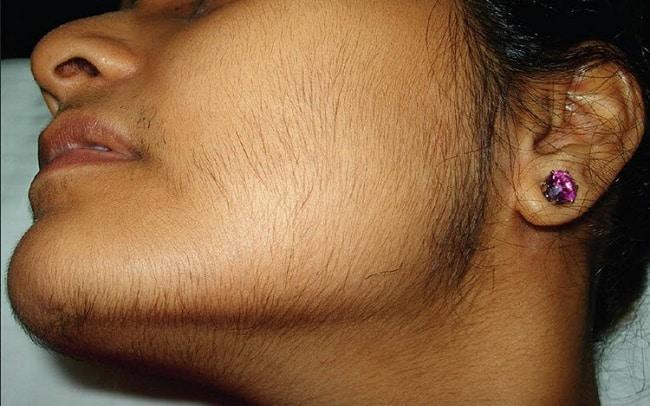 Женщина с растущими на лице волосами