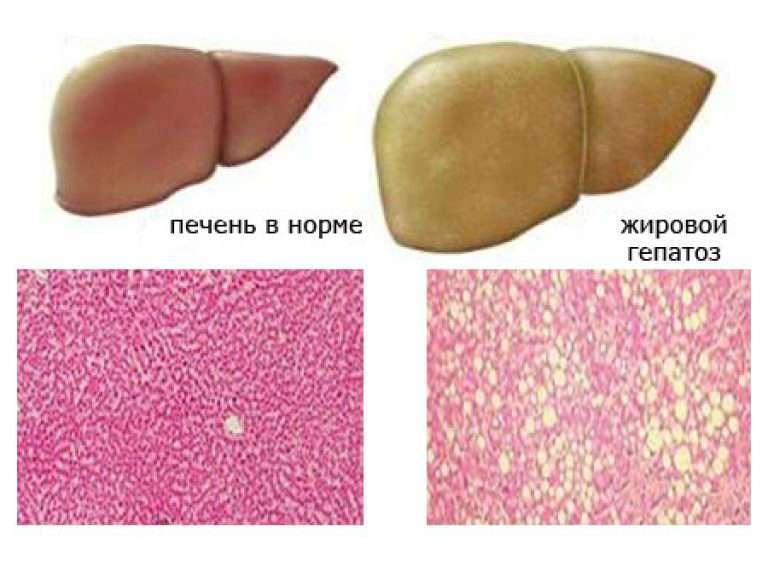 Жировой гепатоз печени, симптомы и лечение