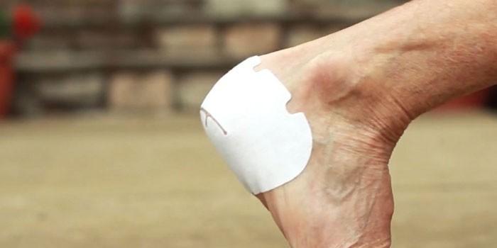 Пластырь для лечения пяточной шпоры