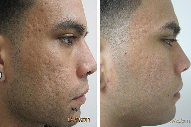 Фото до и после криомассажа