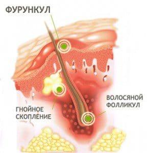 Быстрое лечение фурункула