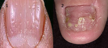 Псориаз на ногтях рук фото