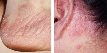 Виды псориаза кожи