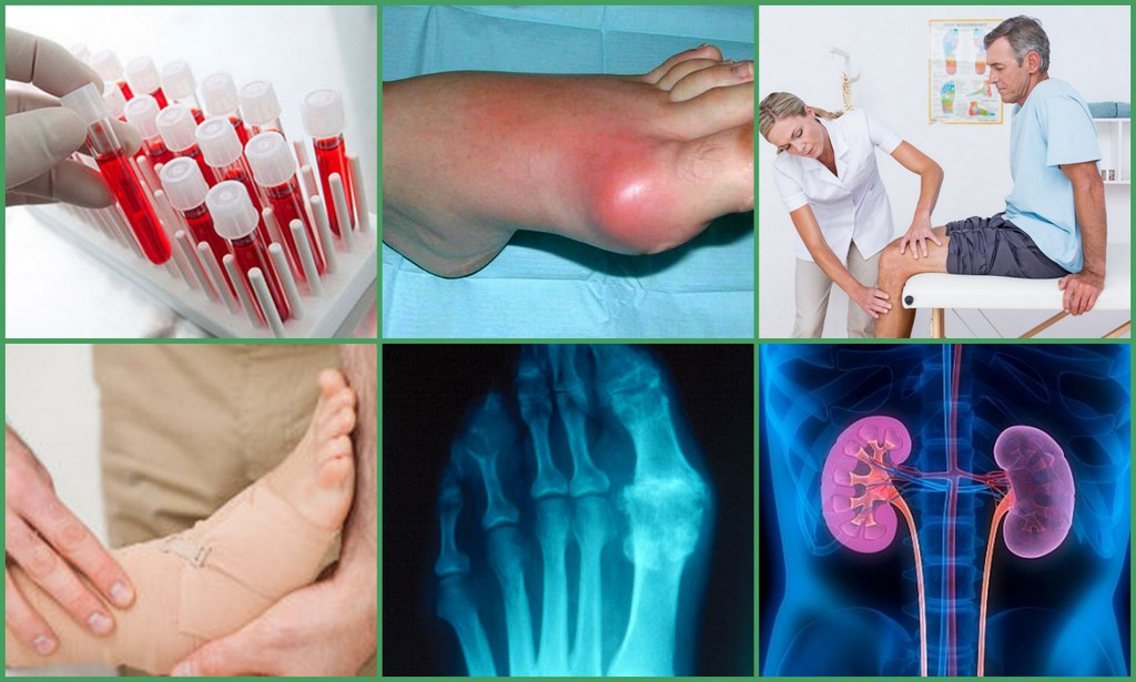 Диагностические методики по обнаружению болезни