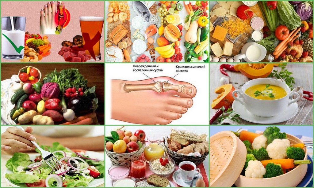 Диетическое питание при заболевании