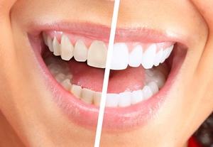 Рекомендации по отбеливанию зубов