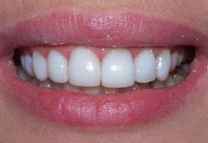 Способы отбеливание зубов дома