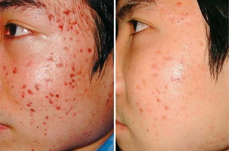 Криомассаж лица: фото до и после