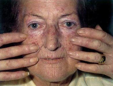 Маскообразное лицо при системной склеродермии