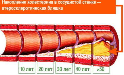 накопление холестерина и атеросклеротическая бляшка