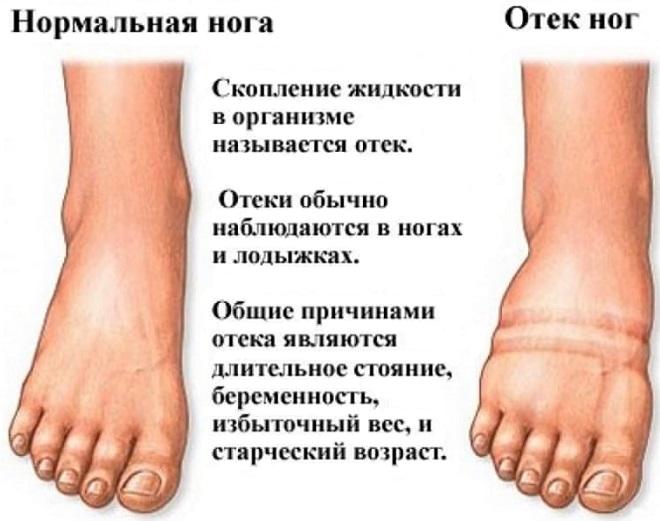 сравнение нормальной ноги с отечной