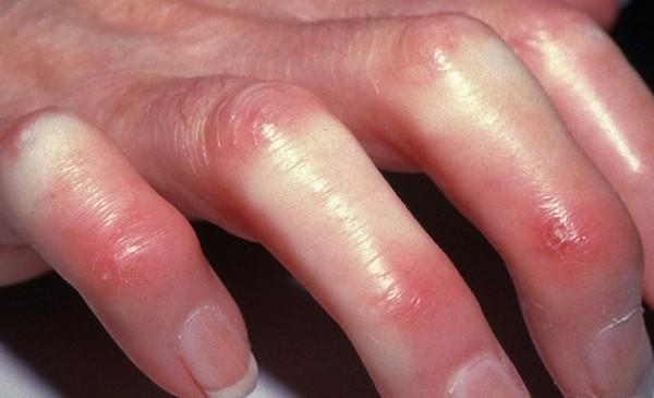 Отёк кистей при системной склеродермии
