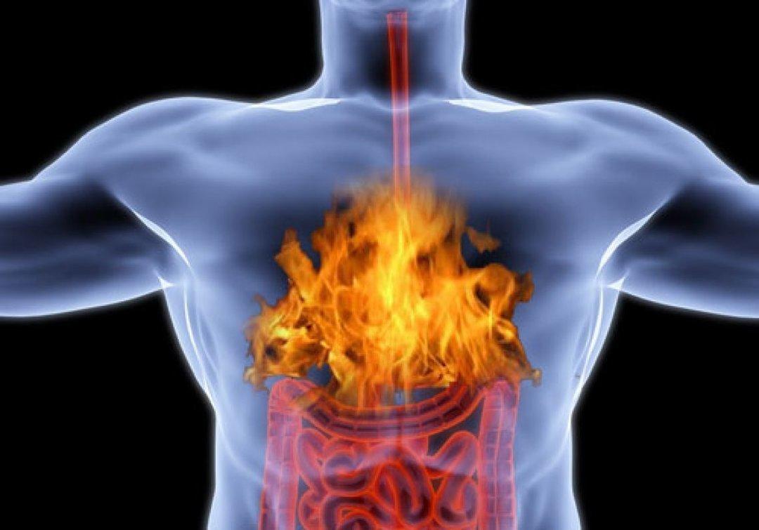 У некоторых изжога проявляется лишь незначительным дискомфортом, у других,напротив, сильным жжением