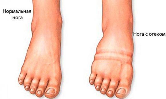 Следы от обуви при отеке ног