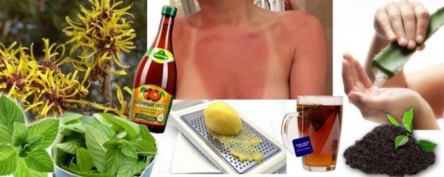 Солнечные ожоги и народные средства от них