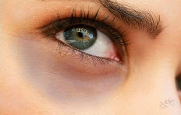 Так выглядят темные круги под глазами