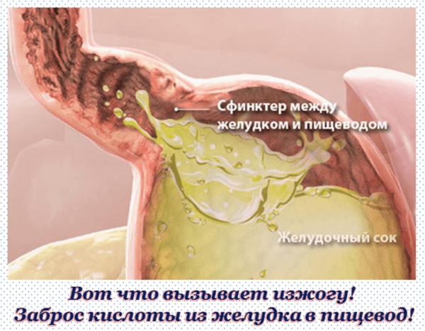 Изжога появляется при забросе кислоты из желудка в пищевод