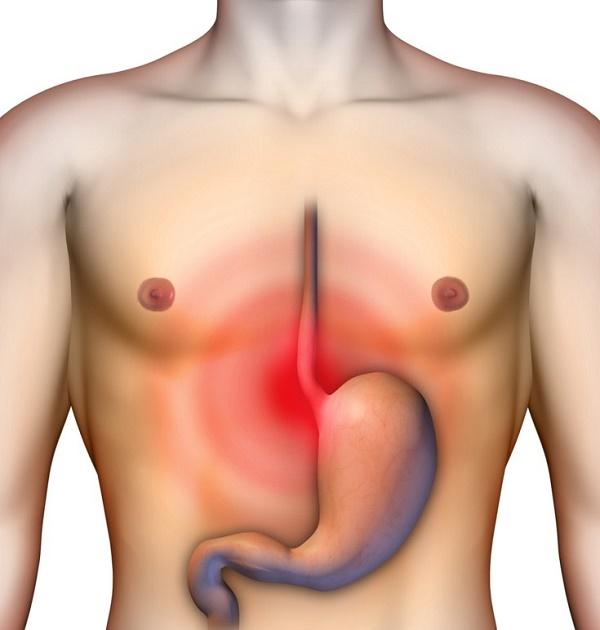 Голодные боли характерны для язвенной болезни