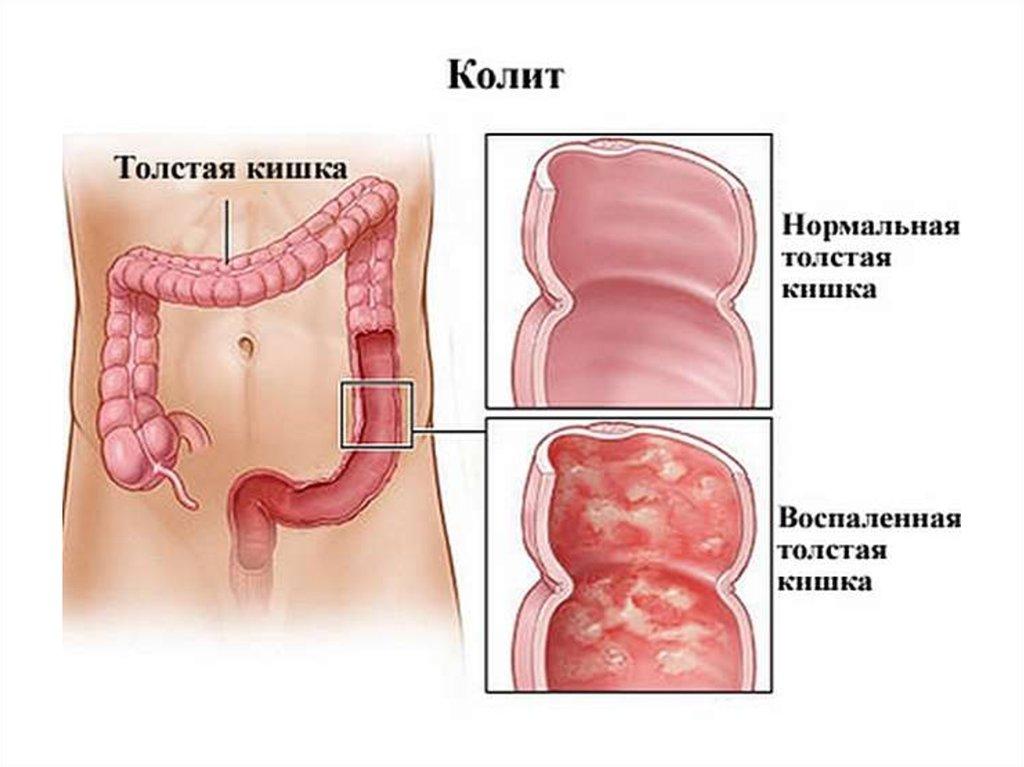 Состояние кишечника при колите