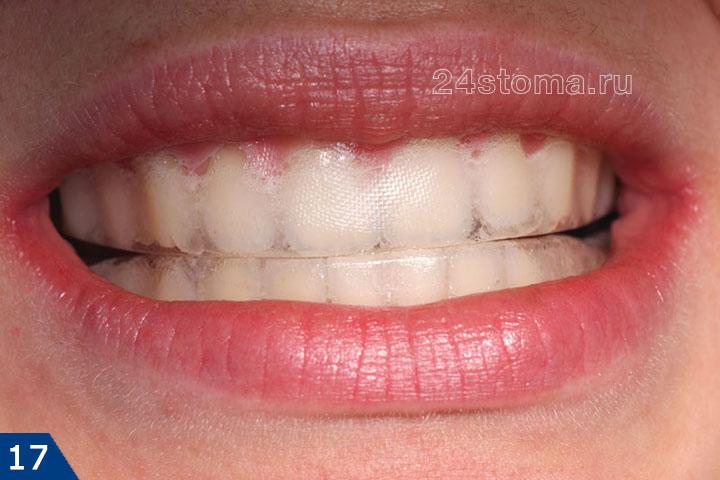 Вид отбеливающей полоски, фиксированной на зубах