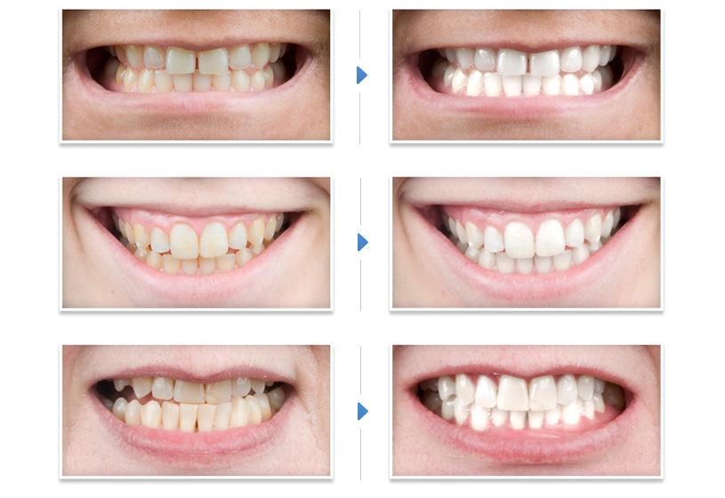 До и после домашнего отбеливания зубов