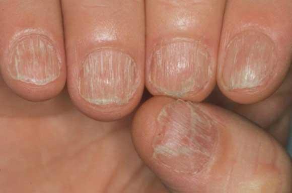 Как избежать грибкового поражения ногтя?